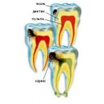 стоматология недорого в Санкт Петербурге