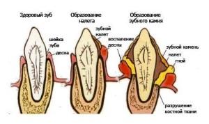 зубной камень, снятие зубных отложений
