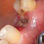 Альвеолит – осложнение после удаления зуба