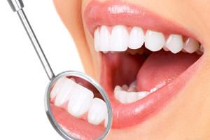 отбеливание зубов в СПб