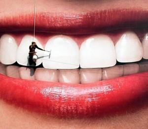 снятие твёрдых зубных отложений