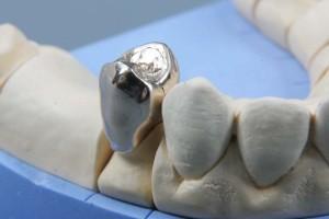 металлические коронки, временные зубы