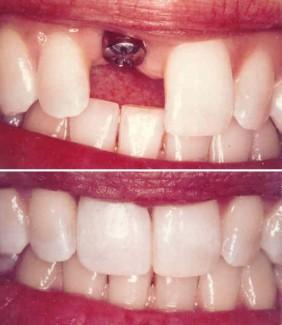 Имплантация переднего зуба