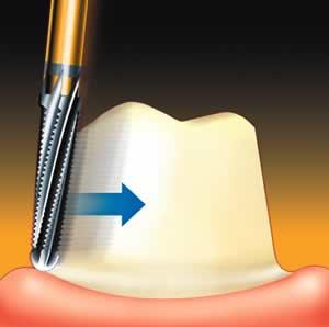 Обтачивание зуба под коронку