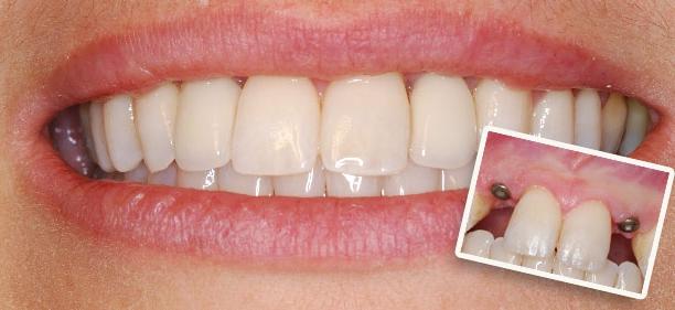 Имплантация пары зубов