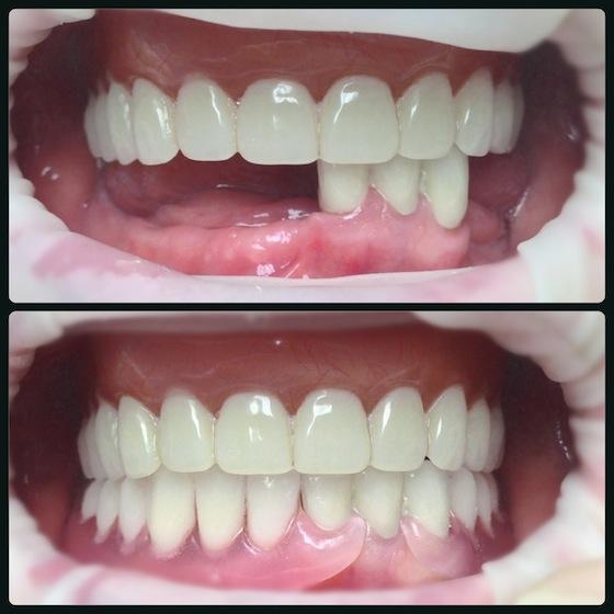 Гибкий нейлоновый зубной протез