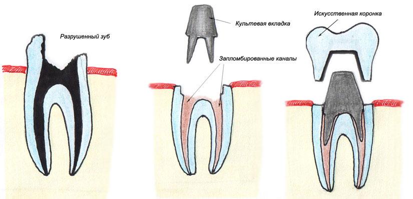 Наращивание зуба на культевую вкладку