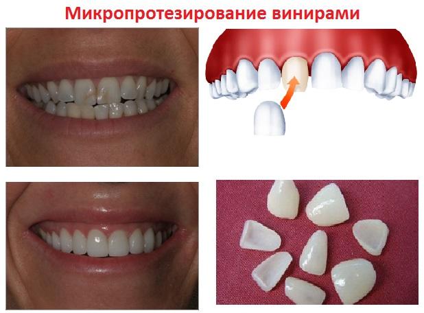 наращивание зубов фото