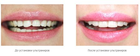 ульраниры до и после фото