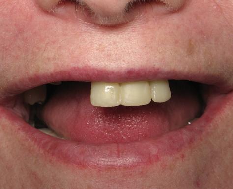 металлокерамическое протезирование зубов до