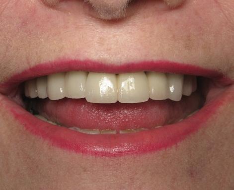 металлокерамическое протезирование зубов после