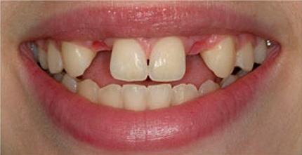 зубные протезы недорого