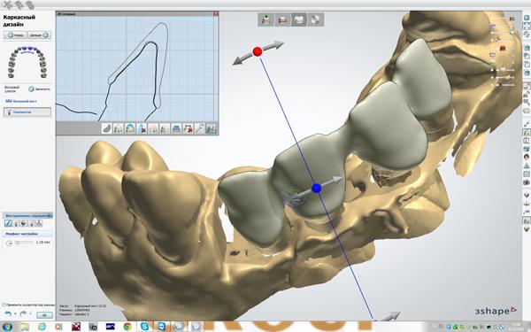 моделирование циркониевой коронки, циркониевые коронки цена
