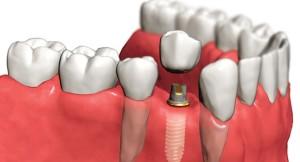 • Имплантация зубов