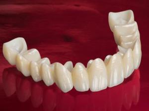 циркониевые коронки для зубов отзывы