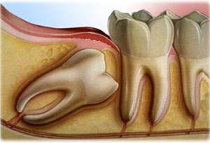Зуб мудрости готовится к прорезыванию