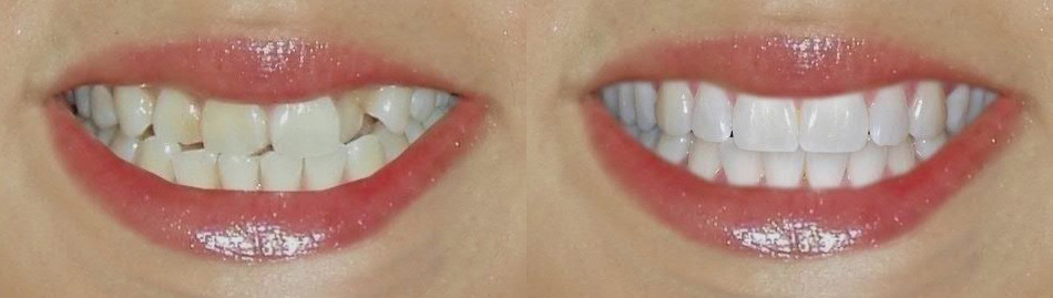 Установка виниров E-Max – фото до и после