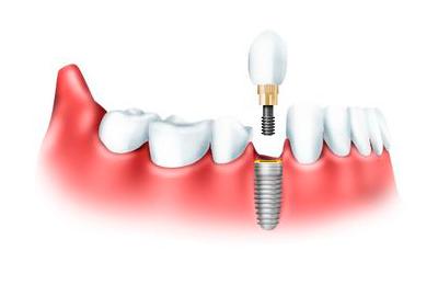 Одноэтапная и двухэтапная имплантация зубов